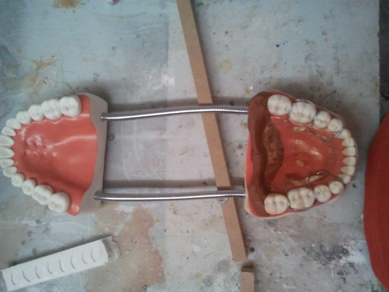 Ficticio dientes en resina